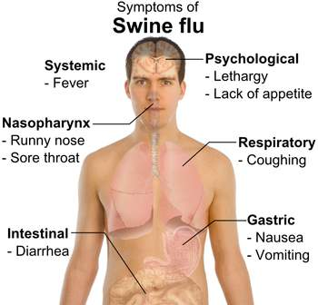 Source: Wikipedia - Symptoms of Swine Flu